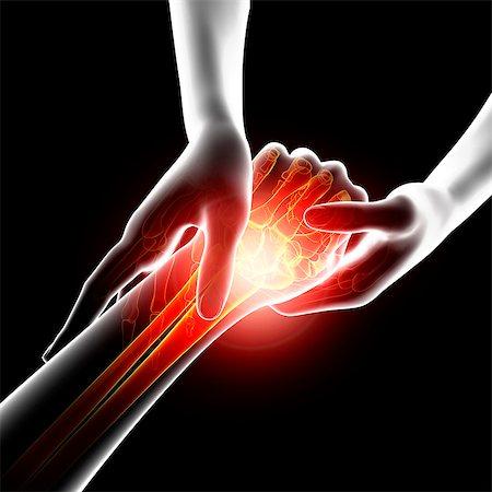 Wrist pain, computer artwork. Stock Photo - Premium Royalty-Free, Code: 679-07604963