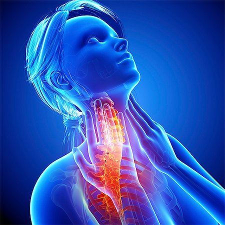 Neck pain, computer artwork. Stock Photo - Premium Royalty-Free, Code: 679-07604975
