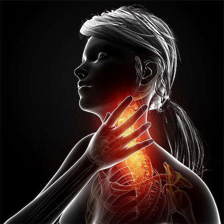 Neck pain, computer artwork. Stock Photo - Premium Royalty-Free, Code: 679-07604979
