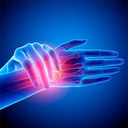 Wrist pain, computer artwork. Stock Photo - Premium Royalty-Free, Code: 679-07604972