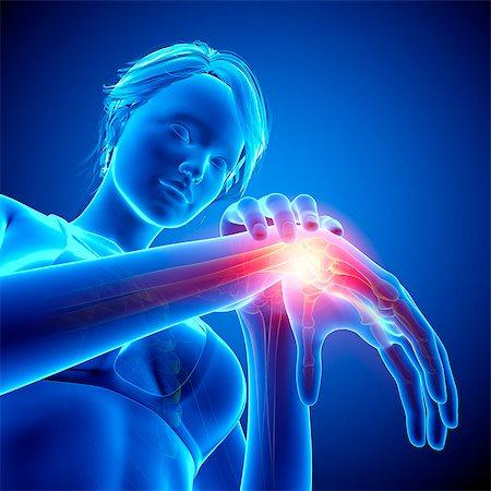 Wrist pain, computer artwork. Stock Photo - Premium Royalty-Free, Code: 679-07604973