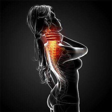 Neck pain, computer artwork. Stock Photo - Premium Royalty-Free, Code: 679-07604984