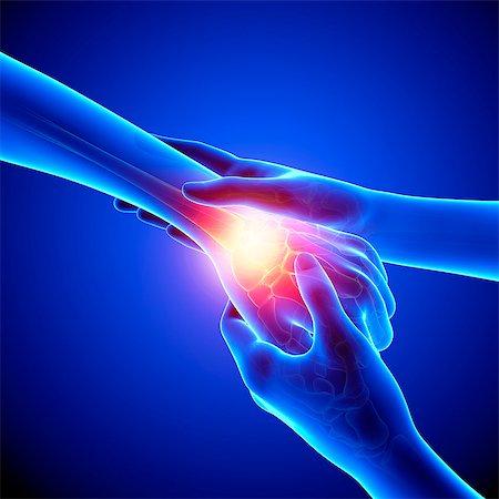 Wrist pain, computer artwork. Stock Photo - Premium Royalty-Free, Code: 679-07604987