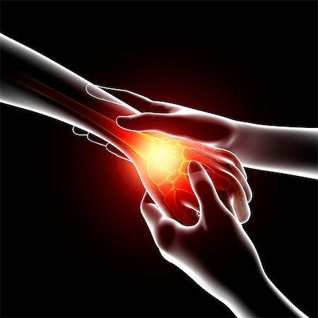 Wrist pain, computer artwork. Stock Photo - Premium Royalty-Free, Code: 679-07604988