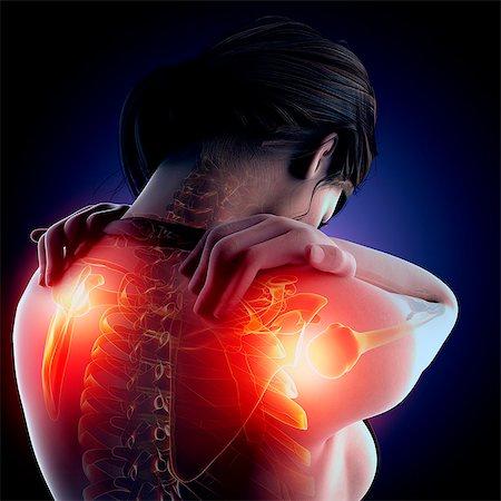 spinal column - Shoulder pain, computer artwork. Stock Photo - Premium Royalty-Free, Code: 679-07604989
