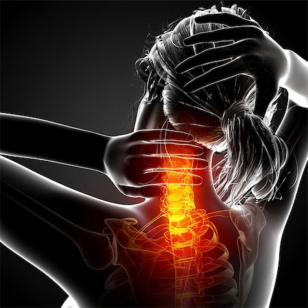 Neck pain, computer artwork. Stock Photo - Premium Royalty-Free, Code: 679-07604981