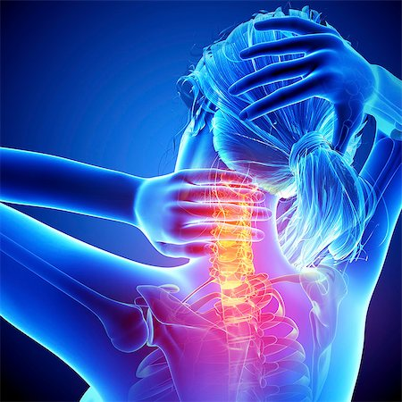 spinal column - Neck pain, computer artwork. Stock Photo - Premium Royalty-Free, Code: 679-07604982