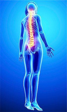 spinal column - Back pain, computer artwork. Stock Photo - Premium Royalty-Free, Code: 679-07605091