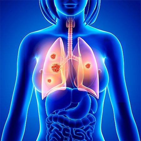 Lung cancer, computer artwork. Stock Photo - Premium Royalty-Free, Code: 679-07605167