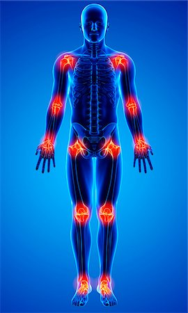 Joint pain, computer artwork. Stock Photo - Premium Royalty-Free, Code: 679-07605161