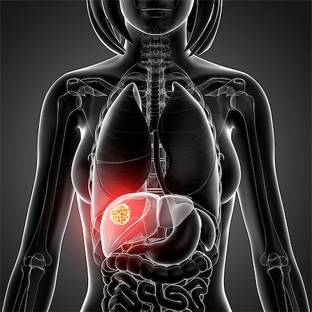Liver cancer, computer artwork. Stock Photo - Premium Royalty-Free, Code: 679-07605245
