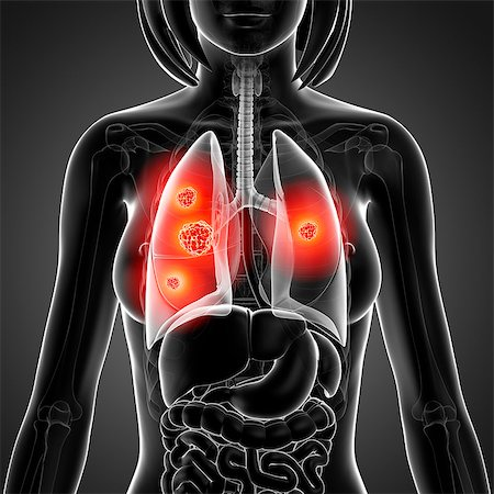 Lung cancer, computer artwork. Stock Photo - Premium Royalty-Free, Code: 679-07605330