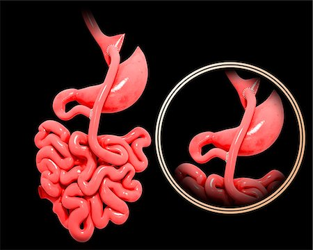 Gastric bypass, computer artwork. Stock Photo - Premium Royalty-Free, Code: 679-07606177