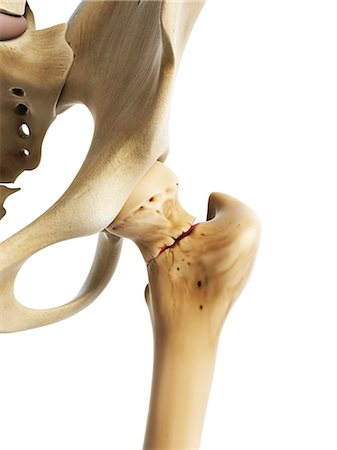 Hip fracture, computer artwork. Stock Photo - Premium Royalty-Free, Code: 679-07607244