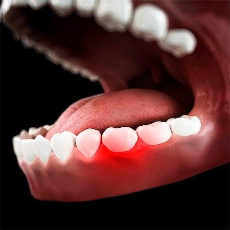 Toothache, conceptual computer artwork. Stock Photo - Premium Royalty-Free, Code: 679-07607317