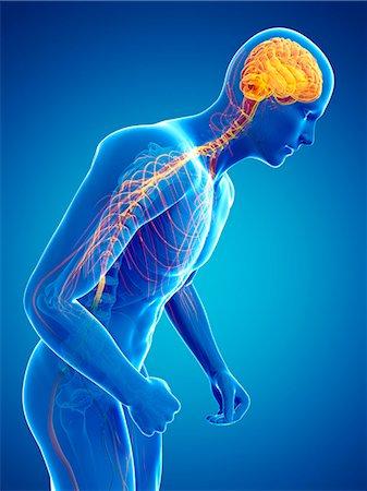 Parkinson's disease, conceptual computer artwork. Stock Photo - Premium Royalty-Free, Code: 679-07607327