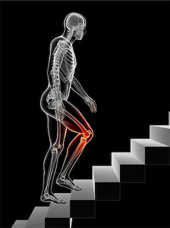 Knee pain, conceptual computer artwork. Stock Photo - Premium Royalty-Free, Code: 679-07607526