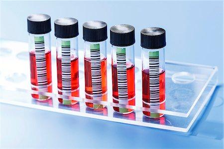 Blood samples in test tube rack. Stock Photo - Premium Royalty-Free, Code: 679-07608192