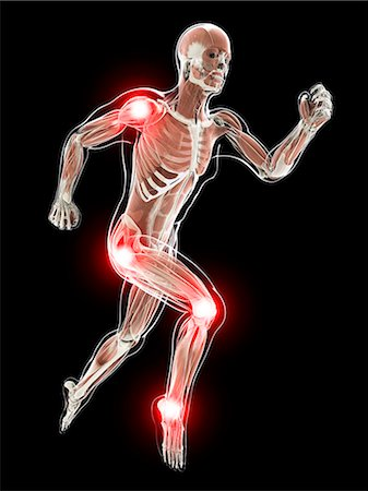 Painful joints, computer artwork. Stock Photo - Premium Royalty-Free, Code: 679-07603216
