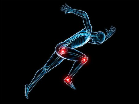 Painful joints, computer artwork. Stock Photo - Premium Royalty-Free, Code: 679-07603219