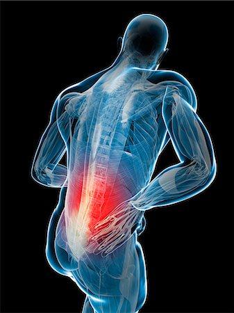 spinal column - Back pain, computer artwork. Stock Photo - Premium Royalty-Free, Code: 679-07603617