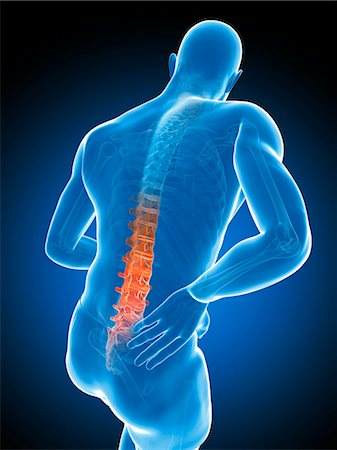 spinal column - Back pain, computer artwork. Stock Photo - Premium Royalty-Free, Code: 679-07603619