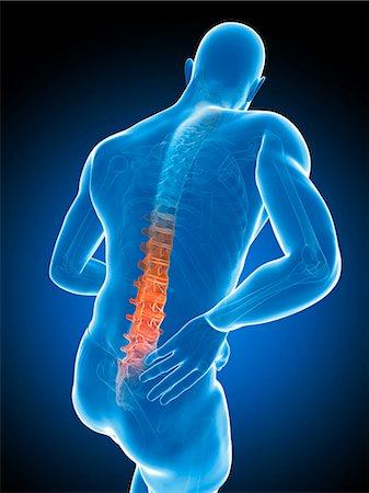 spinal column - Back pain, computer artwork. Stock Photo - Premium Royalty-Free, Code: 679-07603619