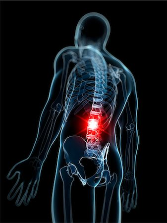 spinal column - Back pain, computer artwork. Stock Photo - Premium Royalty-Free, Code: 679-07603610