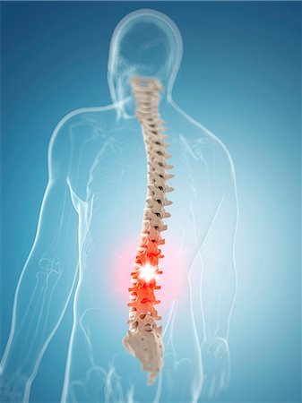 spinal column - Back pain, computer artwork. Stock Photo - Premium Royalty-Free, Code: 679-07603613