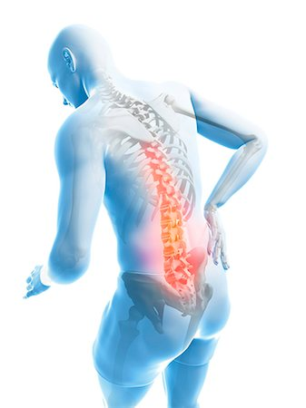 spinal column - Back pain, computer artwork. Stock Photo - Premium Royalty-Free, Code: 679-07603631