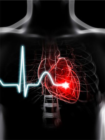 Heartbeat, computer artwork. Stock Photo - Premium Royalty-Free, Code: 679-07603749