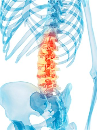 spinal column - Human spine, computer artwork. Stock Photo - Premium Royalty-Free, Code: 679-07650146