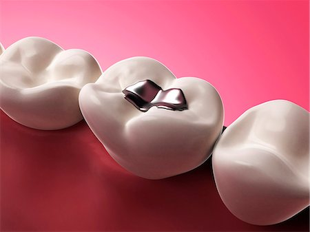dentistry - Human tooth with an amalgam filling, computer artwork. Stock Photo - Premium Royalty-Free, Code: 679-07732696