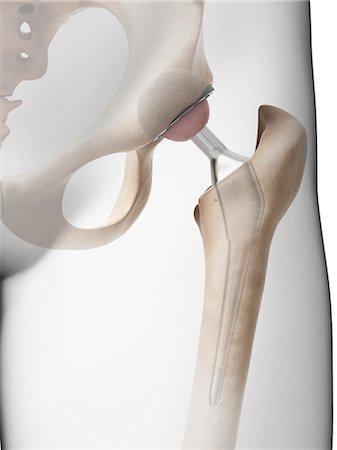 Human hip replacement, computer artwork. Stock Photo - Premium Royalty-Free, Code: 679-07764488
