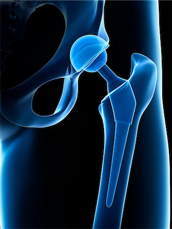 Human hip replacement, computer artwork. Stock Photo - Premium Royalty-Free, Code: 679-07764490
