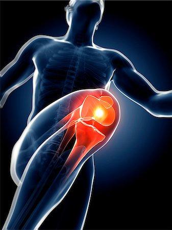 Human anatomy of a runner's knee joint, computer artwork. Stock Photo - Premium Royalty-Free, Code: 679-07764636