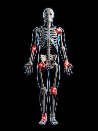 Human joint pain, computer artwork. Stock Photo - Premium Royalty-Free, Code: 679-07765524