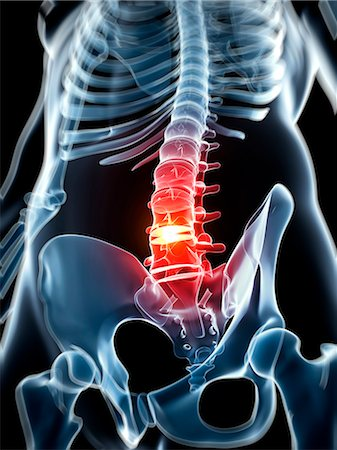 spinal column - Human spine with slipped disc, computer artwork. Stock Photo - Premium Royalty-Free, Code: 679-07765580