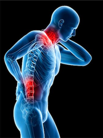 spinal column - Human neck and back pain, computer artwork. Stock Photo - Premium Royalty-Free, Code: 679-07765685