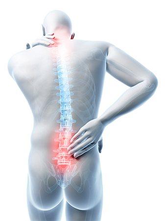 picture - Human back pain, artwork Stock Photo - Premium Royalty-Free, Code: 679-07815039