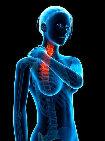 spinal column - Human neck pain, computer illustration. Stock Photo - Premium Royalty-Free, Code: 679-07962516