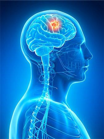 Human brain tumor, computer illustration. Stock Photo - Premium Royalty-Free, Code: 679-07962684