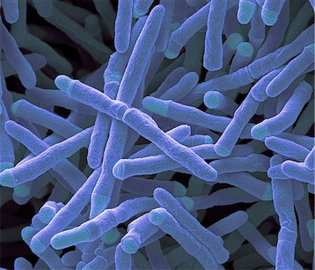 Mycobacterium smegmatis bacteria. Coloured scanning electron micrograph (SEM) of Mycobacterium smegmatis bacteria. These bacteria feed on dead or decaying material. They are found in soil or in smegma (secretions from genital glands of animals). Most Mycobacteria are harmless, but a few are pathogenic, such as Mycobacterium tuberculosis, the cause of the lung disease tuberculosis. M. smegmatis is Stock Photo - Premium Royalty-Free, Code: 679-08008793