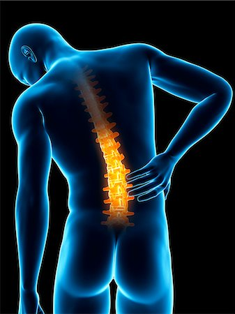spinal column - Human back pain, computer illustration. Stock Photo - Premium Royalty-Free, Code: 679-08008982