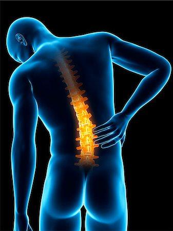 spinal column - Human back pain, computer illustration. Stock Photo - Premium Royalty-Free, Code: 679-08008982