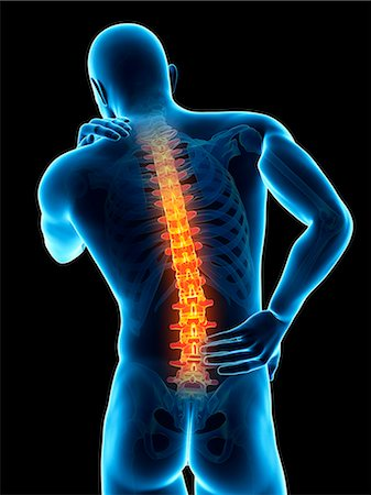 Human back pain, computer illustration. Stock Photo - Premium Royalty-Free, Code: 679-08009007