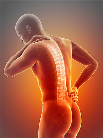 spinal column - Human back pain, computer illustration. Stock Photo - Premium Royalty-Free, Code: 679-08009001
