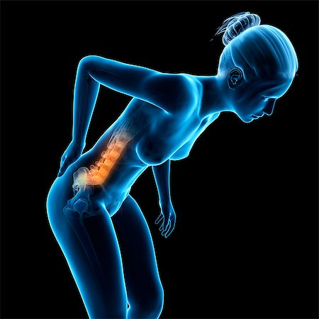 spinal column - Human back pain, computer illustration. Stock Photo - Premium Royalty-Free, Code: 679-08009239