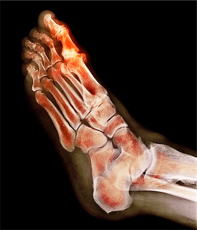 Degenerative foot deformation. Coloured X-ray of a section through the foot of a 66-year-old male patient with a severe degenerative change in the metatarsophalangeal (MTP) joint (highlighted) of the big toe (top). The MTP joints are the articulations between the metatarsal bones of the foot and the proximal bones (proximal phalanges) of the toes. Stock Photo - Premium Royalty-Free, Code: 679-08228296