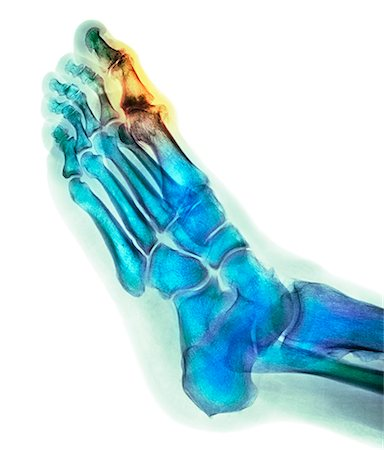 Degenerative foot deformation. Coloured X-ray of a section through the foot of a 66-year-old male patient with a severe degenerative change in the metatarsophalangeal (MTP) joint (highlighted) of the big toe (top). The MTP joints are the articulations between the metatarsal bones of the foot and the proximal bones (proximal phalanges) of the toes. Stock Photo - Premium Royalty-Free, Code: 679-08228298